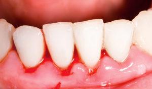 higiene dental en Terrassa