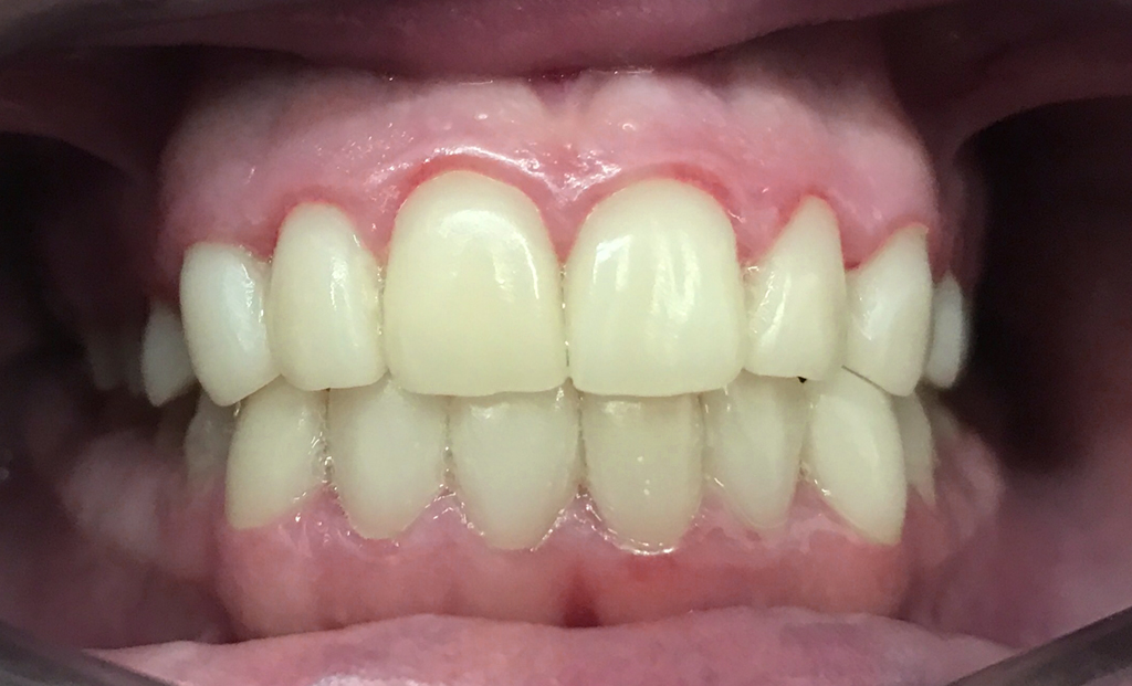 cas real d'estètica dental